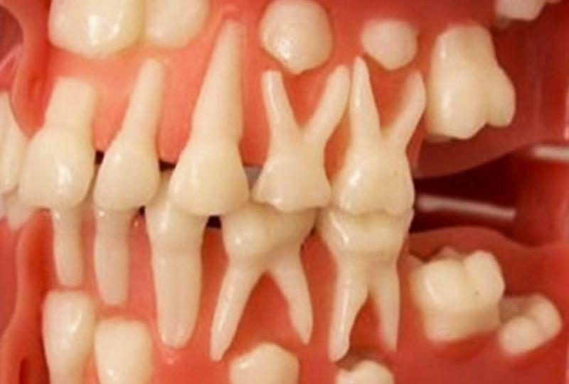 Почему зубы растут только 2 раза