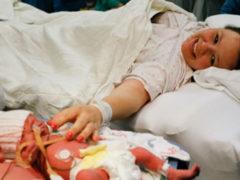 Вместе навсегда: милые крошки прославились на весь мир сразу же после рождения