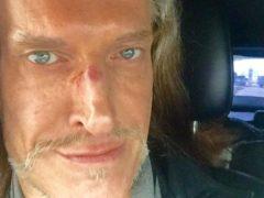 Никите Джигурде сломали нос из-за попытки вступить в права наследства Людмилы Браташ