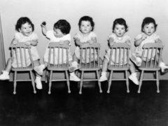 Медицинское чудо: знаменитые сестры-близнецы, о которых писали все СМИ того времени