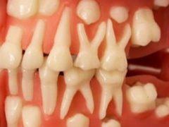 Открытие профессора стоматологии потрясло мир! Теперь вырастить зубы станет возможным в любом возрасте