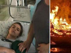 Девочка-подросток вытащила из огня 8 детей, а после потеряла сознание от тяжелейших ожогов