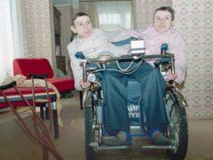 Сиамские близнецы из СССР,  подвергавшиеся издевательствам все 53 года своей жизни