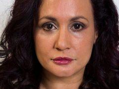 Из-за патологической боязни морщин женщина не улыбается уже более сорока лет