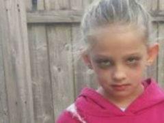 Женщина обратила внимание на ногу измученной 7-летней девочки и сразу выложила фото в Сеть
