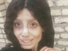 Девушка из Ирана 50 раз ложилась под нож хирурга, чтобы стать точной копией Анджелины Джоли