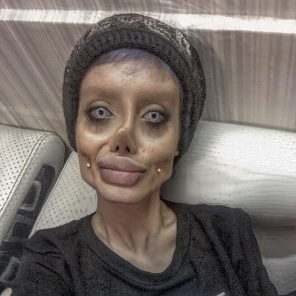 Девушка хотела стать похожей на Анджелину Джоли, у нее почти получилось, но