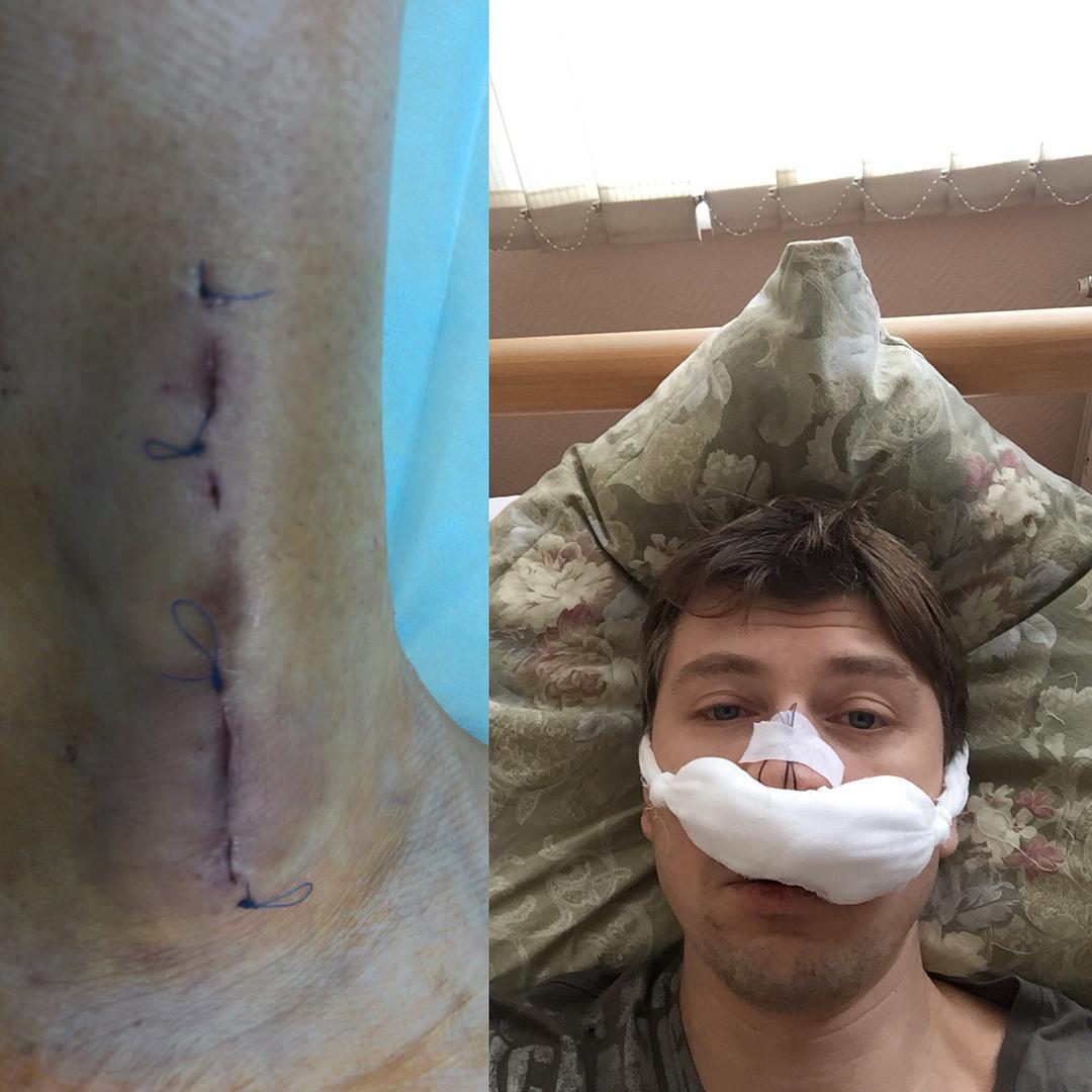 Снова черная полоса: Алексей Ягудин и его жена оказались в больнице, пережив хирургические вмешательства