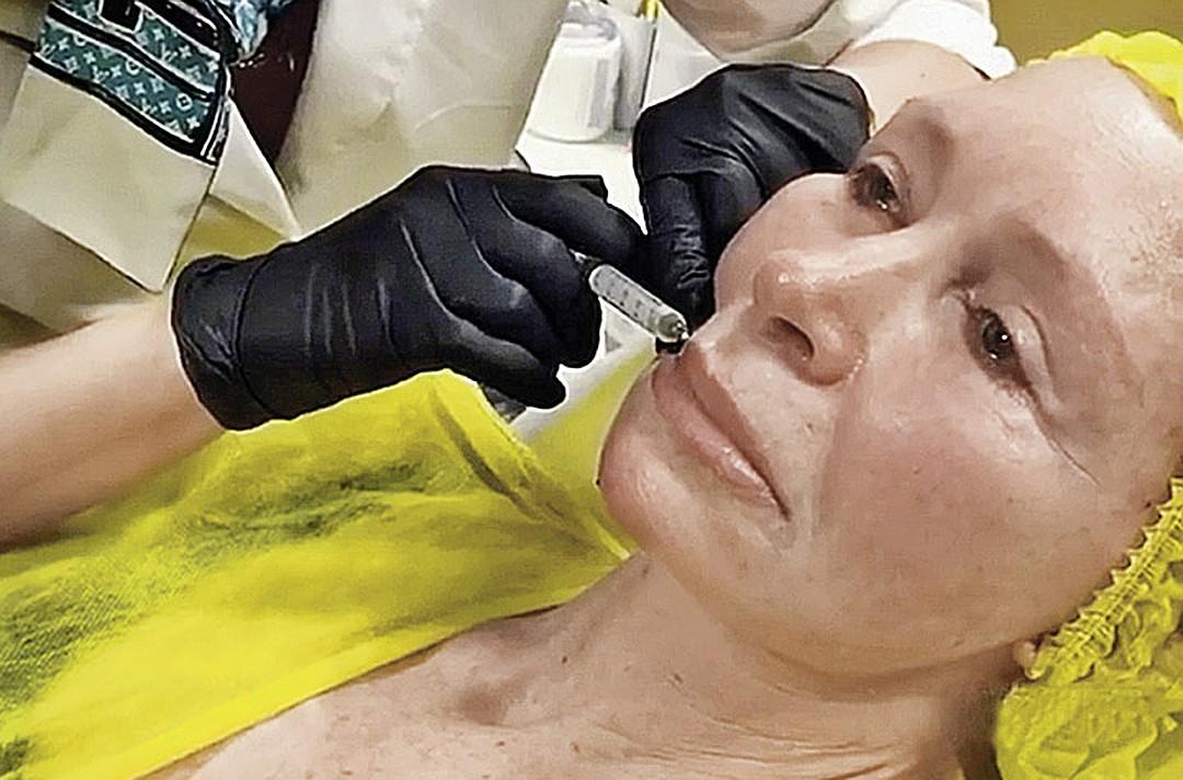 Татьяна Васильева вновь легла под нож хирурга и призвала всех женщин последовать ее примеру