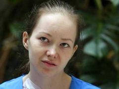 Дарья Старикова, рассказавшая о проблемах президенту в Мурманске, не смогла победить онкологию