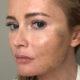 «Лицо мумии на выходе»: Борисова испугала подписчиков результатом последней пластической операции