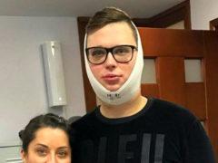 «Русский Кен» Егор Холявин доставлен в больницу в тяжелом состоянии после 20 пластических операций