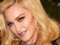 «Зачем так уродовать собственное тело?» – поклонники раскритиковали Мадонну за неудачную пластику ягодиц