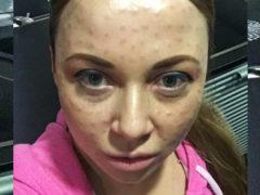 Солистка «Красок» намерена подать в суд на салон красоты, изуродовавший ей лицо новомодной процедурой