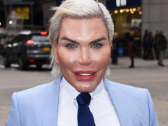 «Живой Кен» похвастался пугающими результатами 62-ой пластической операции, теперь по уменьшению лица