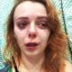 Оставил одну и с больным ребенком на руках: ослепшую «ранетку» Евгению Огурцову всю в слезах бросил муж