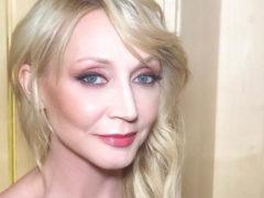 47-летняя певица Кристина Орбакайте встревожила поклонников, показав лицо с огромным синяком под глазом