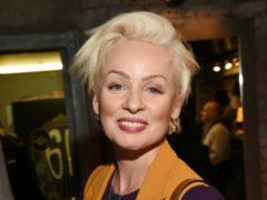 Накануне юбилея Жанна Эппле испортила себе лицо у косметолога в попытке сохранить ускользающую молодость