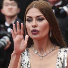 Из-за филлеров перекосило лицо: Виктория Боня пожаловалась на неудачную косметическую процедуру