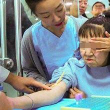 """Девочка из Китая, страдающая от преждевременного старения, получила новое лицо: фотографии """"до"""" и """"после"""""""
